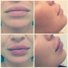 Powiększanie ust , lips, derma Filler , injection