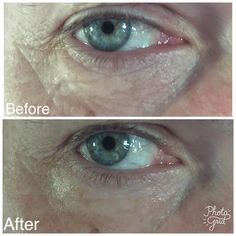 Puffy under eye remedy that works in minutes. His and Her products. Eye Aspire Eye Awake. Undereye dark circle remover. tighten under eye. eye firming antiwrinkle serum. mens results all natural skin care. LimeLight by Alcone. LimeLife by Alcone best anti wrinkle eye serum
