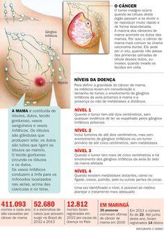 Câncer de mama: cientistas buscam biomarcadores para otimizar tratamento