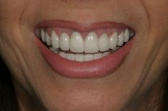 A beautiful smile after! #after #beforeandafter #dentist #whiteteeth #nicesmile