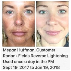 """Sun worshipper, Megan, thanks R+F: """"I noticed a difference in my skin with the Reverse Lightening after only 2 weeks. The spots began to drastically fade away. No more """"sun-stache!"""" There is nothing like the freedom of feeling confident in your bare skin! I call it, """"magic in a bottle"""" because I am truly amazed at how it has completely changed, not only my skin, but my life! Thank you R&F! I am forever grateful."""" #foundationfree"""