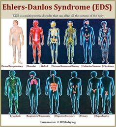 """Ehlers-Danlos Syndrome: EDS is a multisystemic disorder that can affect all systems of the body."" ""May is EDS Awareness Month. Please help to bring EDS education to others by spreading the word. Ehlers Danlos Syndrome Types, Ehlers Danlos Hypermobility, Elhers Danlos Syndrome, Chronic Migraines, Chronic Fatigue, Chronic Illness, Chronic Pain, Chiari Malformation, Rare Disease"