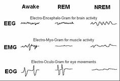 Anyone who has sleep apnea is aware of the problems it causes. Self-education is the first (and possibly the most important) step in dealing with this tricky condition. Take into your heart the awe… Rem Sleep, Brain Anatomy And Function, Brain Neurons, Stages Of Sleep, Sleep Medicine, Sleep Studies, Respiratory Therapy, Brain Science, Studio
