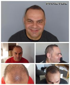 Hair transplantbeforeafterresultphotosofmaleandfemalehttp://phaeyde.com/hair-transplantation