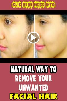 Natural Way To Remove Your Unwanted Facial Hair #women #health #beauty #popular #glowing #skin #hair #UnderarmHairRemoval