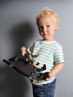 3D-printed hand: Melbourne-designed limb to give patients affordable help | Herald Sun