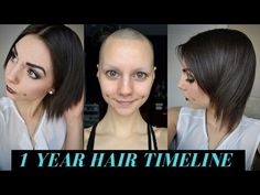 1 Year Hair Growth Timeline (Bald & No Eyebrows) - YouTube