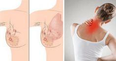 Vous courez le risque d'avoir un cancer du sein si votre corps vous donne ces 5 signaux d'alarme