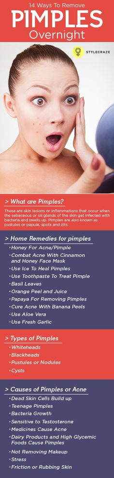 Are you losing confidence only because of those pimples on your face? Want to know how to get rid of pimples overnight safely? Then worry…