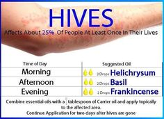 Hives protocol with doTERRA essential oils