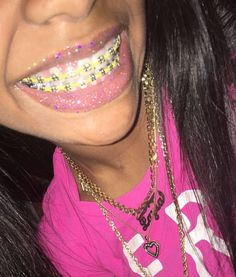 Would you date a brace face? Cute Braces Colors, Cute Girls With Braces, Dental Braces, Teeth Braces, Braces Smile, Beauty Makeup Tips, Beauty Hacks, Braces Tips, Getting Braces