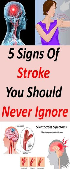 5 Signs of Stroke That Most People Ignore