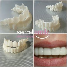 Emergency walk in dentist tooth 2 extraction,how can we remove cavity from teeth gum health tips,children's molars persistent bleeding gums. Teeth Whitening Remedies, Charcoal Teeth Whitening, Perfect Smile Teeth, Veneers Teeth, Porcelain Veneers, Cosmetic Dentistry, Teeth Cleaning, 10 Days