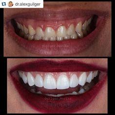 """#Repost @dr.alexguilger with @repostapp.  Bom dia ... Semanas de grandes mudanças !! Segue caso de """"plástica gengival"""" e lentes contato ... Aspecto 1 semana pós colagem. Arte realizada @danielmorita !! #studioodonto #work #whitesmile #whiteteeth #estética #emax #teeth #unicamp #ultradent #ivoclarvivadent #odontology #odontologia #odontologiaestética #photo #aesthetics #art #smile #dentalphotography #dentistry #dentista #laminados #lentes #canon #biomimética #biomimetic #bleaching…"""