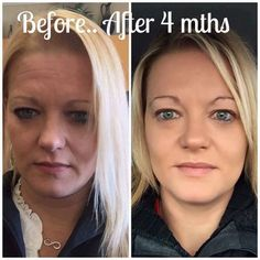 Check out Kathi's AMAZING results after ONLY 4 months of using Rodan + Fields!  In the first pic, she's in full makeup, and in the second all she has on is our Mineral Peptide treatment. SERIOUSLY ~ how GREAT does she look?!  If you AREN'T using R+F, I bet you aren't getting amazing results like these.