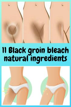 Dark skin of the inner groin or groin can be experienced by anyone, regardless of skin color. This happens because the skin in the groin produces a lot of melanin, the pigment that gives color to the skin. That process is called hyperpigmentation. Dark Neck Remedies, Skin Care Remedies, Natural Remedies, Hyperpigmentation Remedies, Bleaching Your Skin, Dark Armpits, Lighten Skin, Lighten Armpits, Healthy Skin Care
