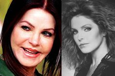 Priscilla Presley now that's sad. She was a beauty. Plastic Surgery Before After, Plastic Surgery Gone Wrong, Priscilla Presley Plastic Surgery, Elvis Presley, Bad Plastic Surgeries, Brow Lift, Celebrity Plastic Surgery, Operation, Lip Injections