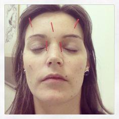 #face #acupuncture #chinesemedicine