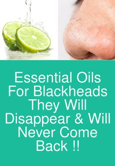 Essential Oils For Blackheads - They will disappear & will never come back ! Essential oils are a g Essential Oils For Migraines, Essential Oils For Skin, Get Rid Of Pores, Get Rid Of Blackheads, Blusher Tips, Clear Skin Tips, Beauty Tips For Hair, Beauty Hacks, Healthy Skin Care