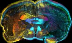 Some of the most impressive medical images of the last year