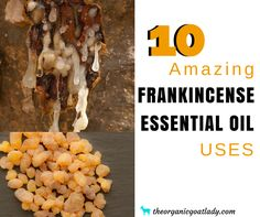 Are you wanting to learn how to use frankincense essential oil? These 10 Amazing Frankincense Essential Oil Uses will give you the inspiration that. Frankincense Essential Oil Benefits, Frankincense Oil Uses, Turmeric Essential Oil, Chamomile Essential Oil, Geranium Essential Oil, Eucalyptus Essential Oil, What Are Essential Oils, Young Living Essential Oils, Pure Oils