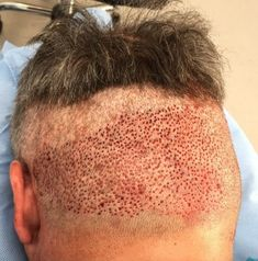 This FUE hair transplant resulted in scars by over harvesting hair follicles from the donor region. There's also an interesting discussion thread with a clinic surgeon (Dr Rogers) on this forum page. Hair Transplant Results, Hair Transplant Surgery, Fue Hair Transplant, Stop Hair Loss, Prevent Hair Loss, Help Hair Grow, Hair Restoration, Acne Skin, Hair Follicles