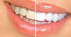 Whiten Your Teeth Using Aluminum Foil and Baking Soda | | Health Digezt