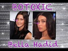 "Bella Hadid, a ""custom"" made ""model"": nose job, lip injections and botoxic face"