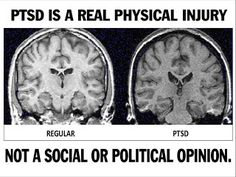 As a recent sufferer of PTSD I found first-hand just how many people don't consider trauma an injury because they couldn't see physical scientific proof of harm- until now. Trauma is a serious injury- take it seriously. Ptsd Symptoms, Ptsd Awareness, Under Your Spell, Complex Ptsd, Stress Disorders, Mental Disorders, Psychology Disorders, Fibromyalgia, Weight Gain