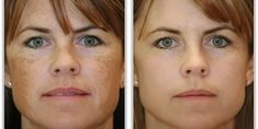 Brown spots usually appear on people who are fifty years old and above and people who have white complexion. 12 natural ways to remove brown spots on face Brown Spots On Hands, Age Spots On Face, Dark Spots On Skin, Skin Spots, Dark Skin, Dark Patches On Skin, Best Face Serum, How To Exfoliate Skin, Natural Skin Care