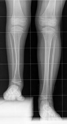 Unterschiedlich lange Beine - Beinverlängerung?