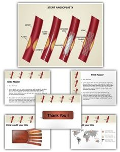 Coronary Stent PowerPoint Presentation Template is one of the best Medical PowerPoint templates by EditableTemplates.com. #EditableTemplates #Surgery #Coronary Stent #Biology #Atherosclerosis #Circulation #Attack #Cardiology #Health