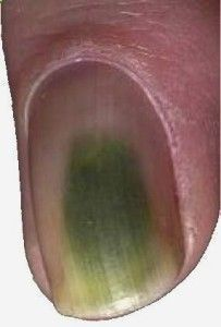 Everything you should know about Green Nail Syndrome Green nail syndrome – The facts What is Green Nail Syndrome and why isn't a Fungal Infection? #nails