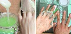 Inainte ii era rusine sa-si arate mainile, acum toata lumea o intreaba ce crema foloseste de sunt asa frumoase
