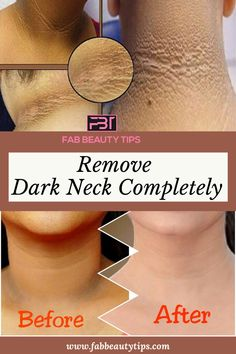 In this article we are talking about different home remedies that you can try at home to get rid of the dark neck in just a week. Beauty Tips For Skin, Best Beauty Tips, Skin Tips, Beauty Skin, Beauty Hacks, Beauty Ideas, Face Beauty, Diy Beauty, Home Beauty Tips