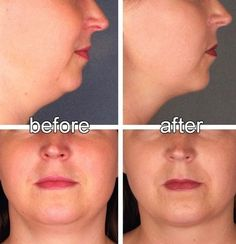 Face Aerobics Tip: Double Chin Firming To Improve Or Remove A Dual Chin