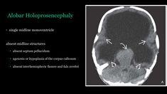 Pediatric Radiology, Corpus Callosum, 49er, Pediatrics, Septum, Nose Rings