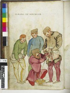 katetera- Inserción que se  aplica cuando la retención urinaria como consecuencia de la sífilis y otras enfermedades de transmisión sexual, 1560