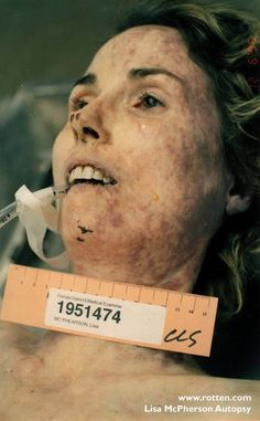 Autopsy Photos of Lisa McPherson Famous Murders, Church Of Scientology, Post Mortem Photography, Celebrity Deaths, Criminology, State Of Florida, Serial Killers, True Crime, Medical Conditions