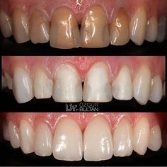 Dental Anatomy, Restorative Dentistry, Dental Veneers, Dental Art, Cosmetic Dentistry, Teeth, Creativity, Cases, Smile