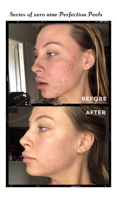 Pin By Zero Nine Day Spa On Zero Nine Solutions For Acne Acne Perfection Peel