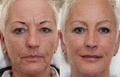 Cheek Fillers, Facial Fillers, Liquid Facelift, Make Me Up, Anti Aging, Photography, Beauty, Photograph, Fotografie