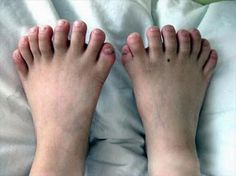 Polydactyly, or extra fingers and toes, can be caused by a genetic disease. The gene responsible for determining polydactyl is located in chromosome seven and it is equally...