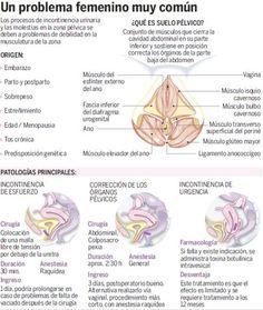 Cirugía para abordar la incontinencia urinaria femenina