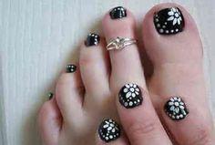 Black & white toe nails