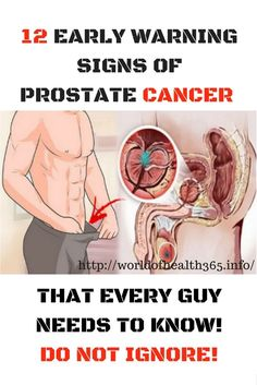 If you're a man, the federal government estimates that you have about a one-in-seven chance of developing prostate cancer at some point during your lifetime. Based on 2012 data, nearly three millio…