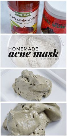 DIY Acne Mask Recipe
