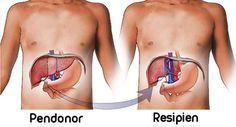 Rincian Biaya Transplantasi Ginjal