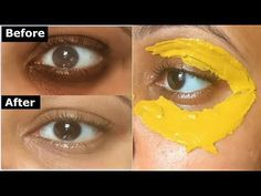 Turmeric Eye mask to Remove DARK CIRCLES, Under Eye wrinkles & under eye bags - Care - Skin care , beauty ideas and skin care tips Dark Circles Under Eyes, Dark Under Eye, Tumeric Masks, Gaston Y Daniela, Dark Circle Remedies, Under Eye Wrinkles, Under Eye Bags, Puffy Eyes, Dark Eyes