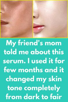 My friend's mom told me about this serum. I used it for 6 months and it changed my skin tone completely from dark to fair Skin Whitening GLOW SERUM at Home Best Magical Serum For Face Get Fair, Glowing Spotless Skin Naturally At Home – guaranteed Skin Care Regimen, Skin Care Tips, Bio Oil Pregnancy, Bio Oil Uses, My Friends Mom, Vitamin C Tablets, Natural Skin Whitening, Skin Care Routine For 20s, Skincare Routine
